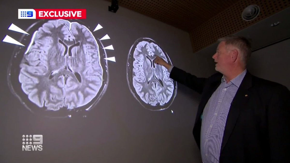 In a world-first, Adelaide researchers have identified a way to stop repeated concussions leading to permanent injury. @VSchwarz9 #9News https://t.co/PnPhlkbNma