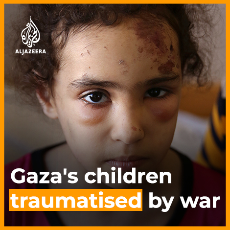 """""""She screams when people reach out to her""""  Suzy was pulled from the rubble of her home in Gaza after an Israeli air strike in May.  ‼️Half of young people in Gaza -about 500K children- could be in need of psychological support,says @UNICEF via @AJEnglish https://t.co/yLR3HDy7UO"""