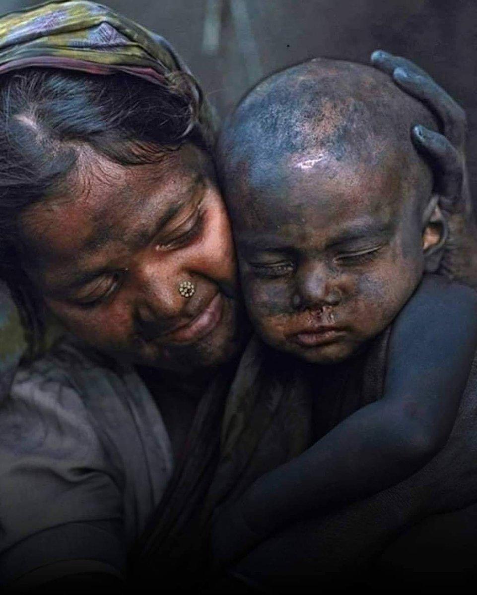 कोयले की खानों में काम करने वाली एक आदिवासी महिला अपने हीरे के साथ। इस बच्चे के भविष्य के साथ मां नहीं सरकार खिलवाड़ कर रही है। क्योंकि एक माँ पेट भरने के लिए हर कठिन संघर्ष का रास्ता चुनती है। सोचना चाहिए सरकार को वो ऐसे वर्गों के लिए क्या कर रही है? #WorldDayAgainstChildLabour https://t.co/y31FvGPMXy