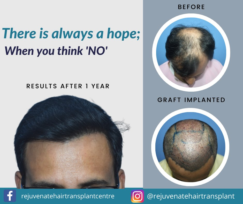 """There is Always a Hope; When You Think """"NO"""" . Get the Best Consultation with us - https://t.co/Ax0gMZgacz  #baldhead #dranilgarg #hairtransplant #drseemagarg #hairlossclinic #baldness https://t.co/VYEZ18DGmT"""