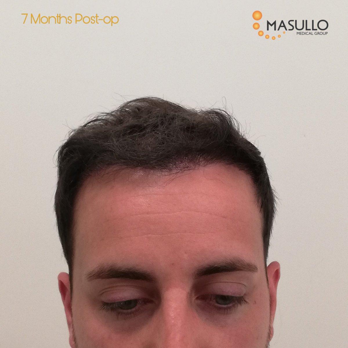 𝐀𝐮𝐭𝐨𝐭𝐫𝐚𝐩𝐢𝐚𝐧𝐭𝐨 𝐝𝐞𝐢 𝐂𝐚𝐩𝐞𝐥𝐥𝐢 𝐜𝐨𝐧 𝐓𝐞𝐜𝐧𝐢𝐜𝐚 𝐅𝐔𝐄. Il nostro paziente a visita di controllo dopo 7 mesi dall'intervento!  #masullomedicalgroup #hair #hairloss #drvincenzomasullo #baldness #calvizie #alopecia #salerno #napoli #roma #Bologna https://t.co/tZPTmxhUZB