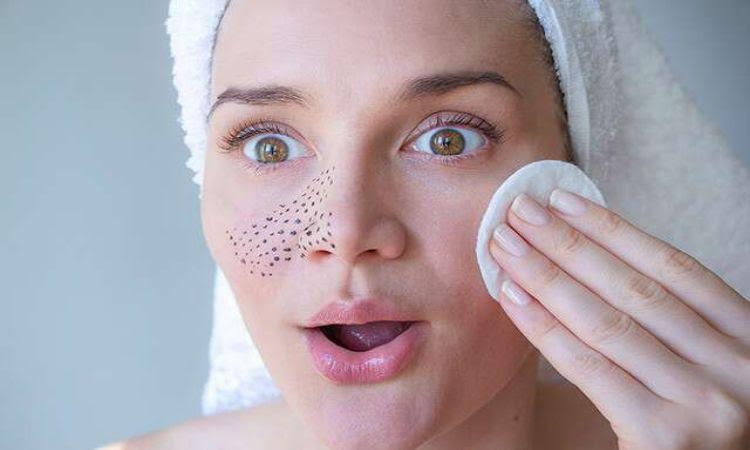 Want Stubborn Blackheads to be Gone? Try these tips recommended by the best dermatologist, Pune