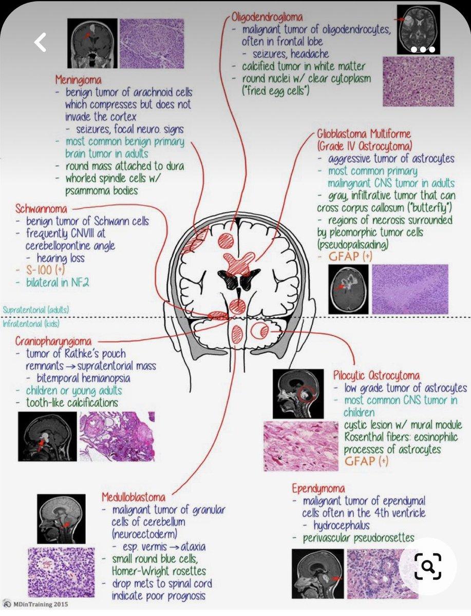 اشهر اورام المخ في صورة تبين مصدر كل منهما : https://t.co/aOVoO6aFpv