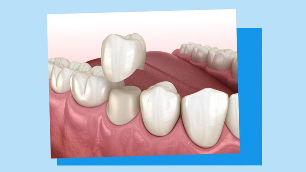 Manchmal sind die #Zähne durch #Karies so stark beschädigt, dass eine Füllung nicht mehr möglich ist. Dann überkront der #Zahnarzt den Rest des Zahnes. Welche Zahnkronen-Arten gibt es? Und wie sieht es mit den Kosten aus? Mehr dazu in unserem Ratgeber 👉🦷 https://t.co/2qTPCogEpU https://t.co/j1kpGLzJ46