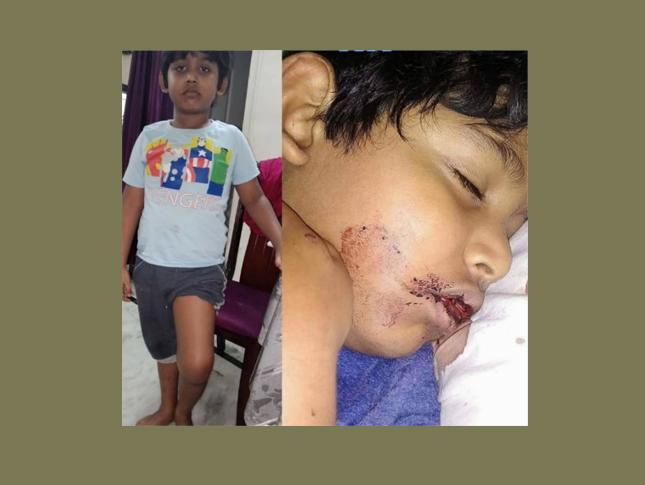 Pls donate for Raja 10 yrs boy who is suffering from rare case of Hemophilia(blood bleeding) Donation Link: https://t.co/5GLziU1g9r #Hyderabad #SaturdayThoughts #SaturdayVibes #Olympics2021 #gurupoornima #TokyoOlympics #GuruPurnima2021 #India #Mumbai #COVID19 #quotes #Livestream https://t.co/cekdHiMnI8