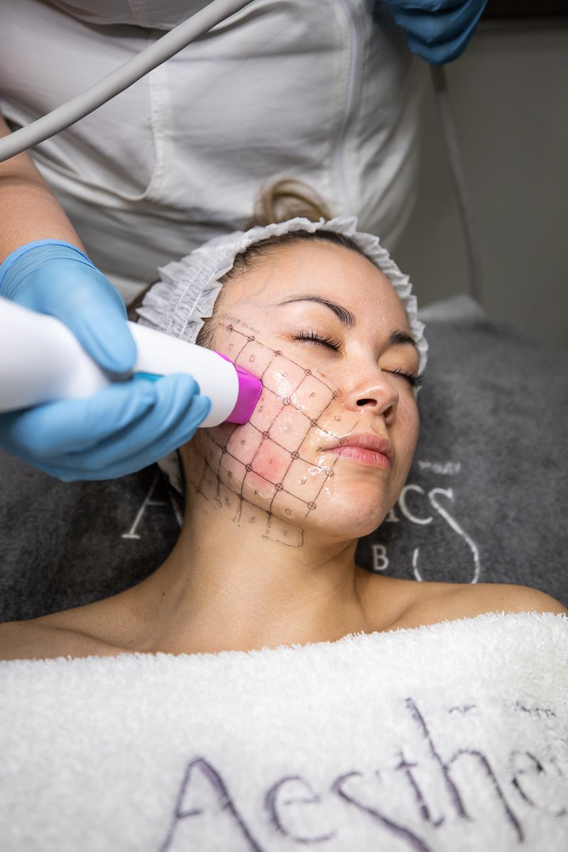 test Twitter Media - Thermage FLX is the pioneer and global leader in non-invasive skin tightening treatments.  This treatment is perfect for:  Fine lines &wrinkles Sagging &loose skin Jowls Crepey skin on elbows, knees and tummy! https://t.co/h481VJeTbj