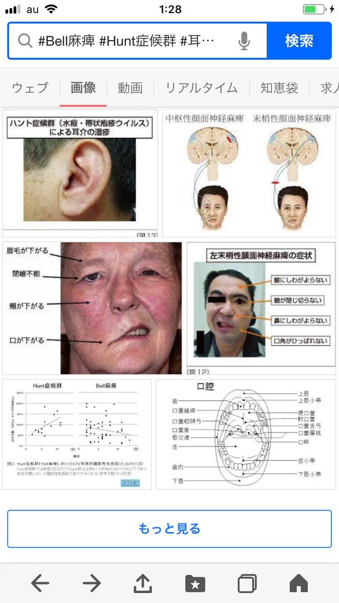 麻痺 顔面 神経
