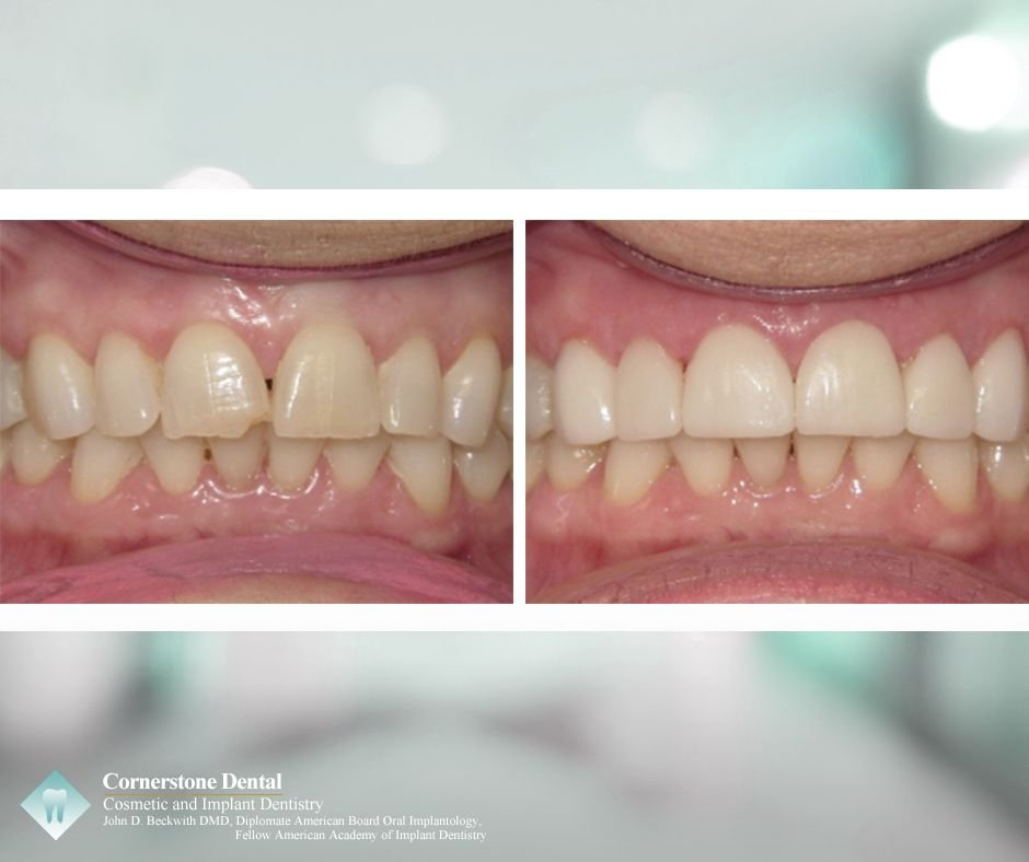 cosmeticdentistry hashtag on Twitter