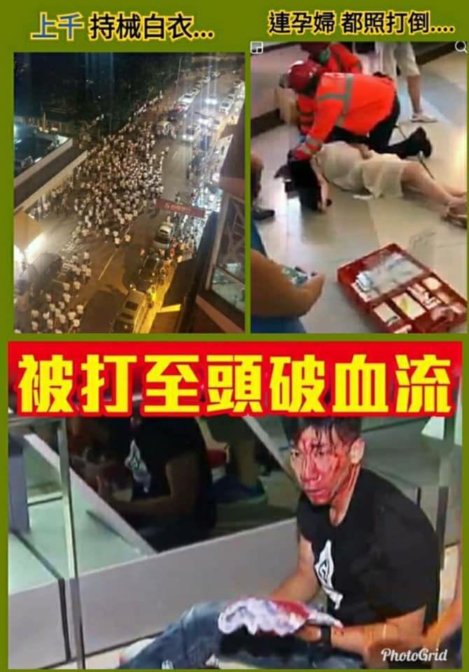 中共よくやってる常套手段だ。昨日香港デモで中共はヤクザ白衣服を着てる人らを雇用し、鉄棒で人、妊婦、子供を殴ってたり、軽重傷で血だらけ。香港は本当の選挙無し、中共の傀儡に支配され、こんな結果だ!日本の若い人、幸せで平和であると思いけど、政治に無関心はダメだ。