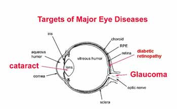 Eye Diseases that affect Drivers http://shar.es/1SNyJh  #ArriveAlive #Eyesight #Eyecare #RoadSafety @EssilorZA