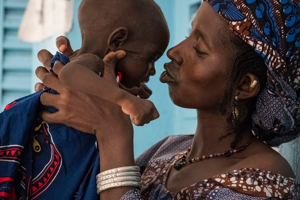 Did you know that in the last 10 years, the nutritional situation of children in #Mali has not significantly improved ?1 in 10 children suffer from severe acute malnutrition1 in 4 children suffer from stuntingStunting causes irreversible physical & cognitive damage to children