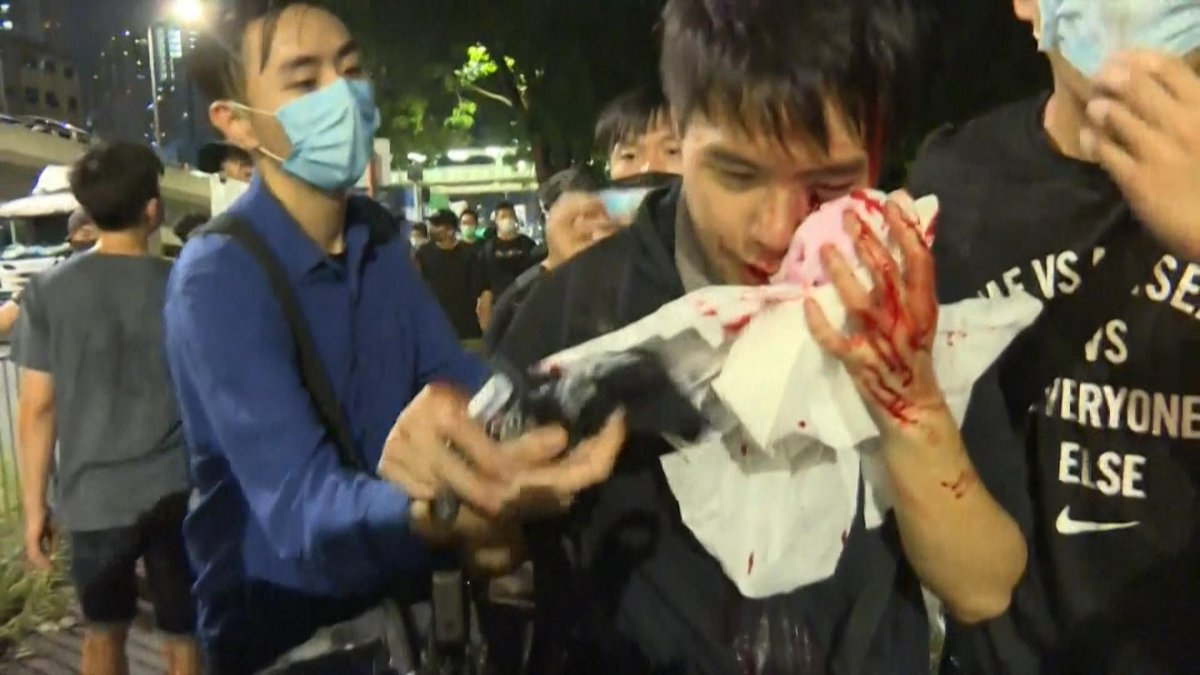 About three dozen people were injured Sunday night after an unidentified group attacked a crowd of anti-government protesters in Hong Kong. https://n.pr/2Y7J3pp