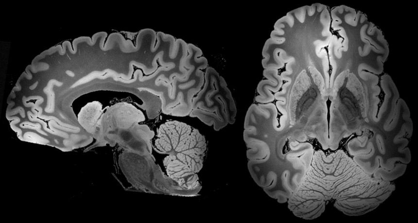 Wow, this is just stunning. Researchers from @IcahnMountSinai in NYC managed to create the most detailed MRI scan of a human brain ever, using a 100-hour MRI scan. The scan shows brain structures in such vivid detail unseen before. #medical #innovation  https://buff.ly/2LKXYmT