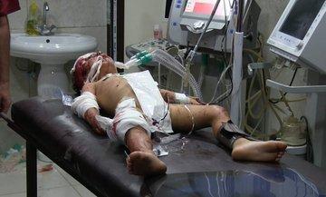Минобороны РФ на выставке о войне в Сирии показало кассетные бомбы, использование которых отрицало - Цензор.НЕТ 5419