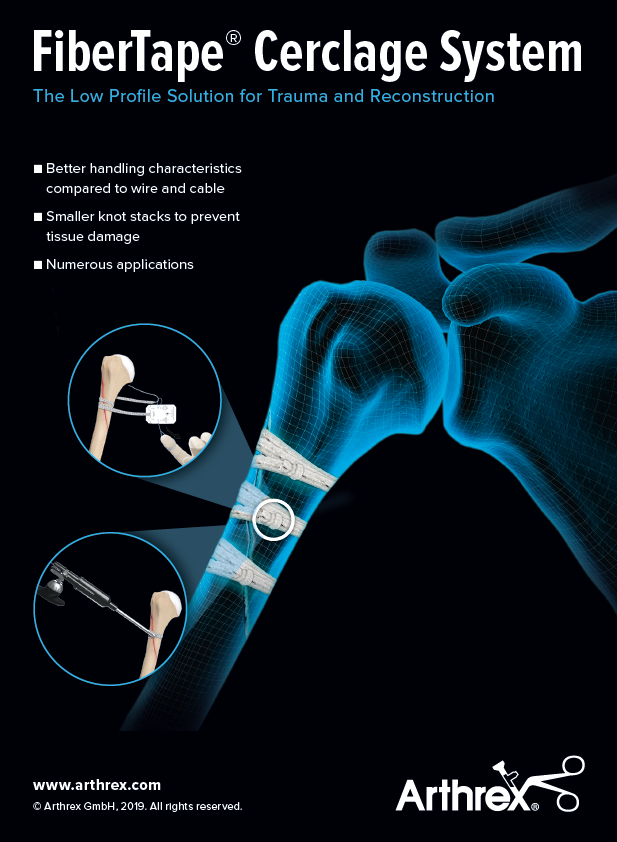Presenting the NEW FiberTape Cerclage system for oblique proximal humeral fractures. Available Now!#DiscoverArthrex