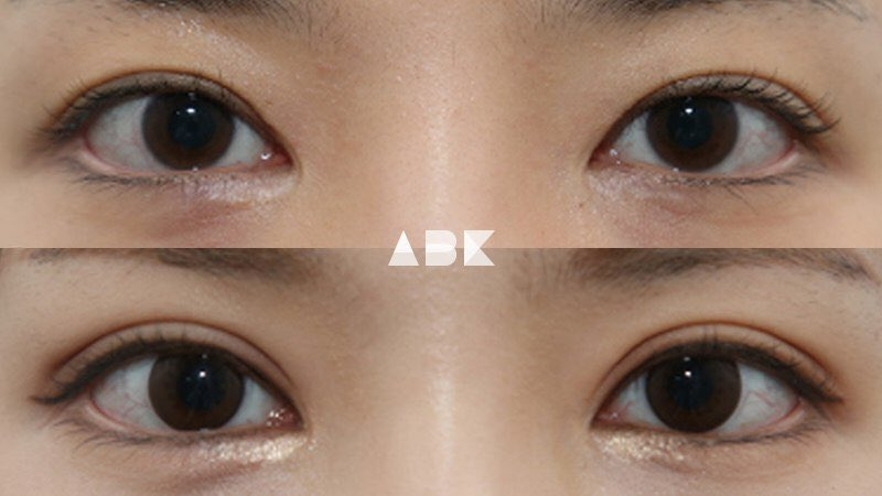 韓国美容外科サポート(ღˇ◡ˇ*)♡#ALLBEAUTYKOREA #症例写真ABK公式提携病院?【グロービー美容整形外科】☑︎目再手術,目つき矯正二重幅を少し広げるだけできつそうな目元から柔らかな印象に。目も大きく見えます?美容整形•専門通訳が必要なら?ABK公式LINE ⇒