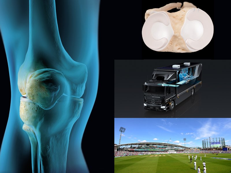 Interested in all things Meniscus?  Join us at #ArthrexLive - The Meniscus on 25th September in London, for an evening dinner meeting with excellent Faculty, discussion and multiple live demonstrations of key techniques.  See https://loom.ly/HwMKv-Q  for info.#DiscoverArthrex
