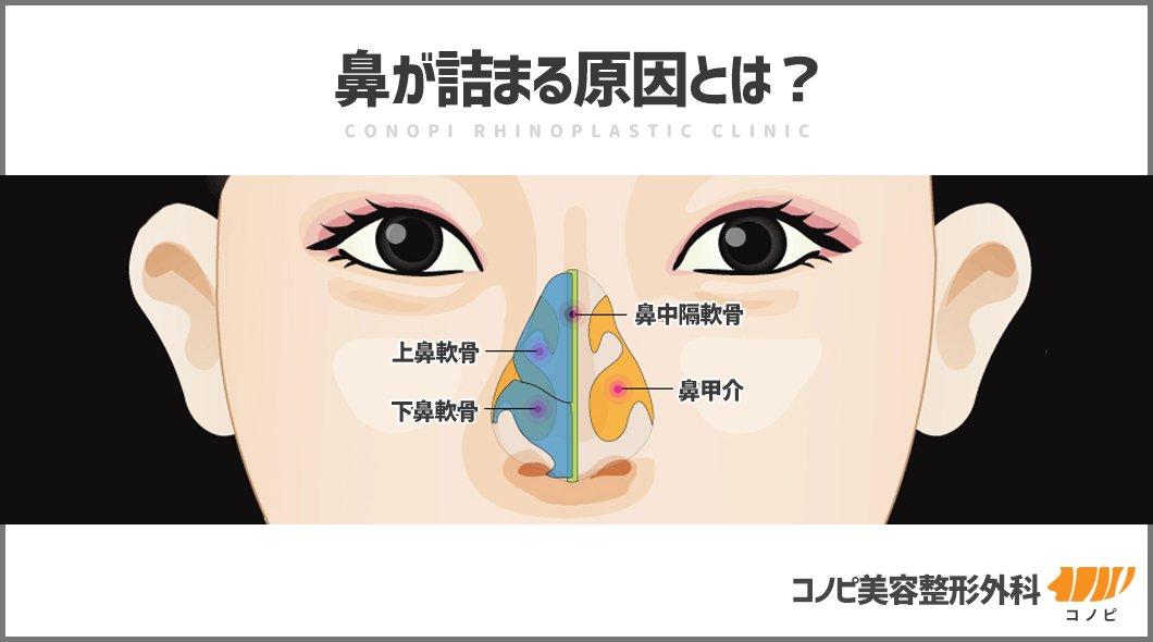 韓国鼻専門?コノピ美容整形外科鼻づまりの原因とは??もしかして鼻炎??!コノピがあなたの悩みを解決します!まずは一度、カウンセリングにいらしてください?お問い合わせはこちらまで?LINE➡️(link:  #鼻整形 #韓国整形 #整形 #韓国 #鼻 #コノピ #美容整形