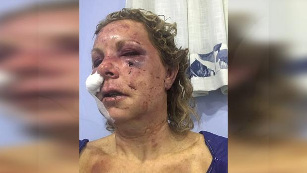 woman attacked dominican republic