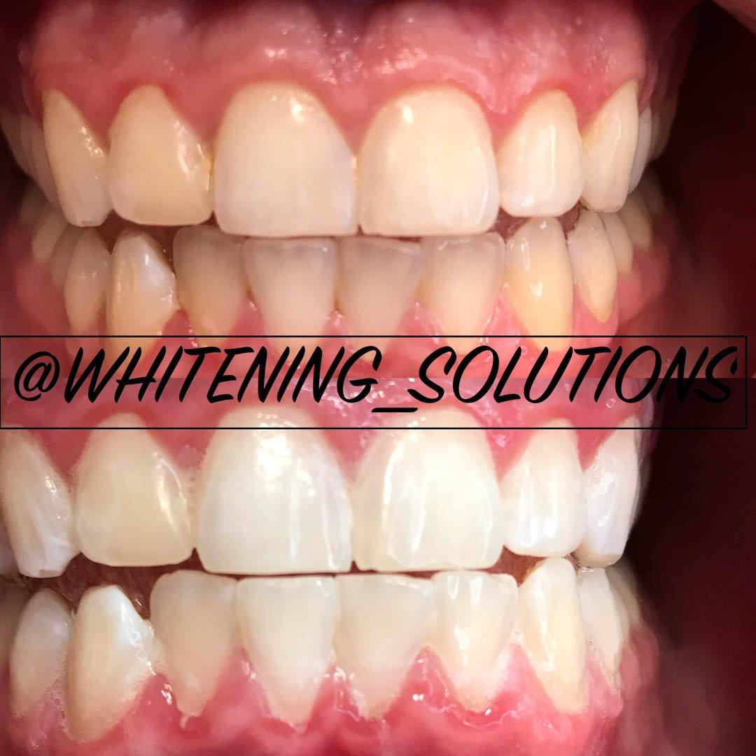 Η #teethwhiteningpen ετικέτα στο Twitter