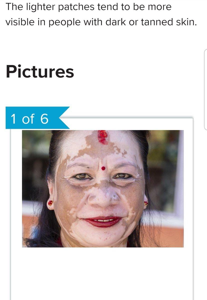 pdf Reconstructive Facial Plastic Surgery: A