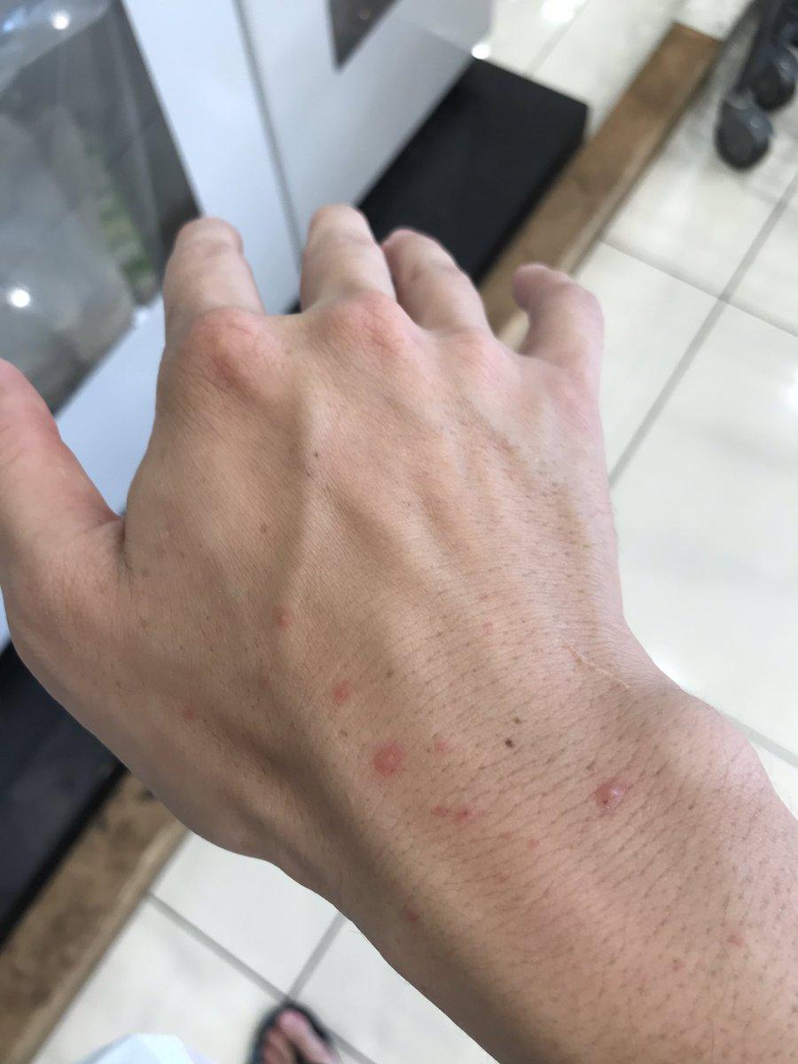 大人 の 手足 口 病 症状