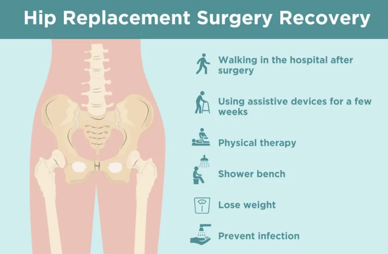 larry manetti stroke surgery recovery - 1024×683