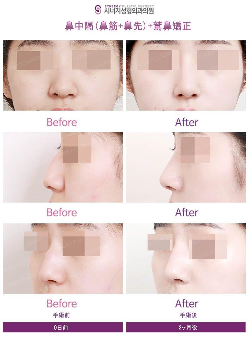 ✨鼻の整形の症例写真✨?クリニック名 : シナジー整形外科手術部位:鼻筋、鼻先、鷲鼻矯正HP:               LINE ID: @pgs7984p日本患者さんのための韓国人通訳職員がいます。#シナジー整形外科、#鼻整形、#鼻筋、#鼻先、#韓国、#カンナム