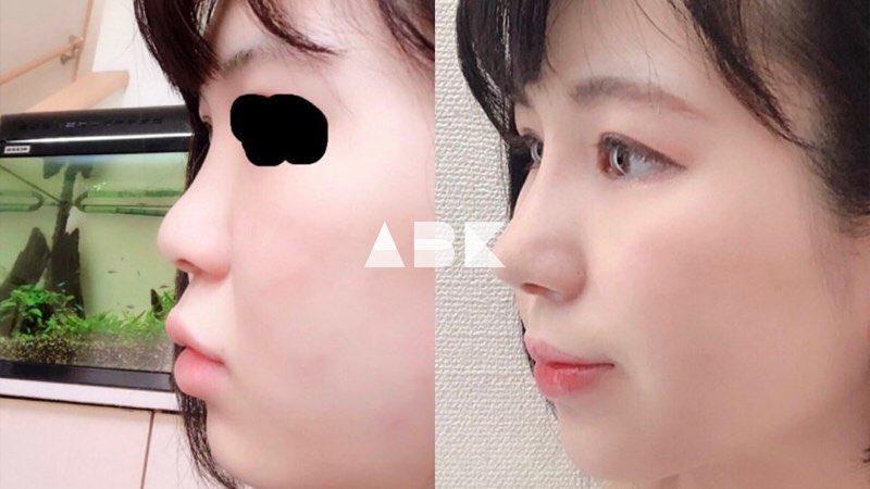 韓国美容外科サポート(ღˇ◡ˇ*)♡#ALLBEAUTYKOREA #症例写真ABK公式提携病院?【ソウルクイーン整形外科】☑︎鼻整形(鼻筋+鼻先)鼻の手術だけで綺麗なEラインが!口元も変化したように見え横顔が劇的に美しく?美容整形相談•専門通訳が必要なら?ABK公式LINE ⇒