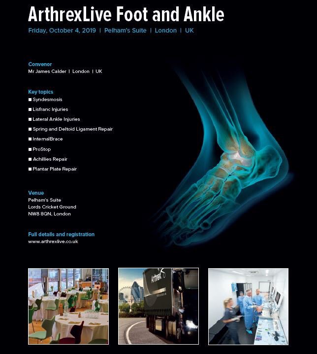 Register now for the London #ArthrexLive Foot & Ankle Symposium. Hosted by James Calder at @HomeOfCricket on Friday 4th October. Great Faculty and multiple live surgical demonstrations. http://loom.ly/sbF_dFw #DiscoverArthrex