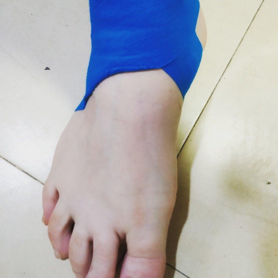 diabetes piernas magulladas