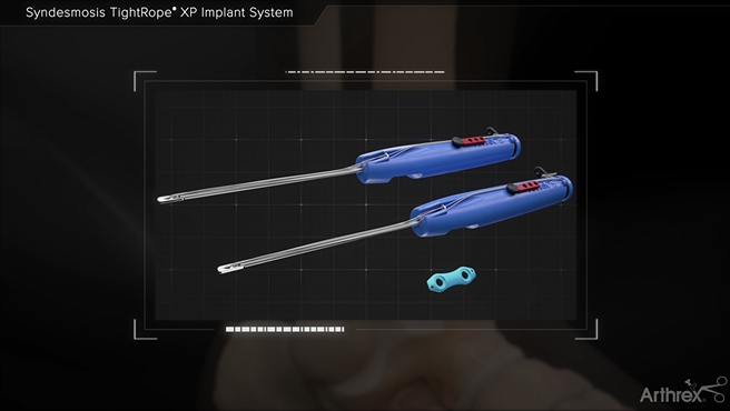 Restore the anatomy and Biomechanics of the syndesmosis with the Syndesmosis TightRope XP Implant System. https://loom.ly/fsOWZwM #DiscoverArthrex