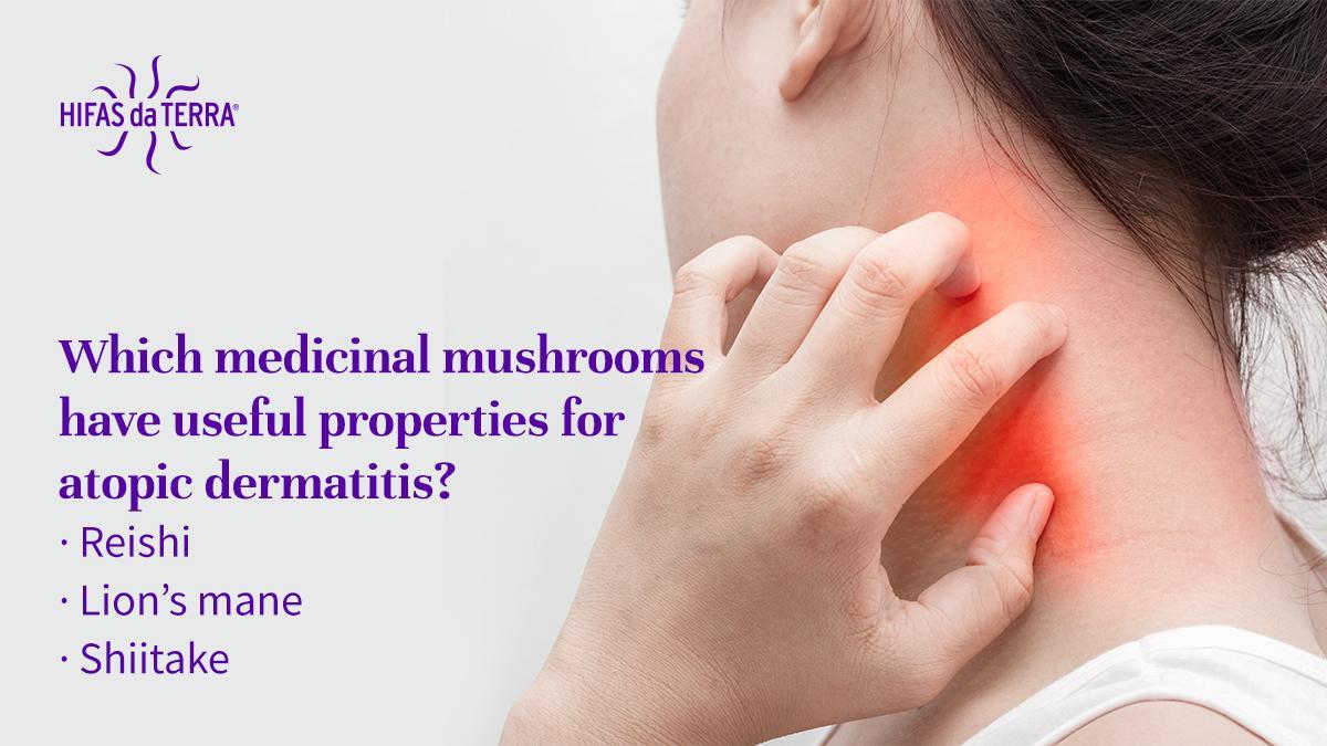Hashtag #dermatitis su Twitter