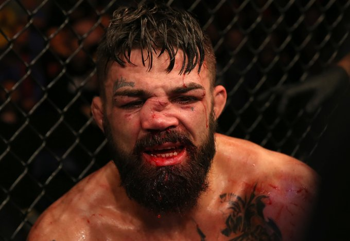 Photos: MMA Fighter Mike Perry Broken Nose After FIGHT With Vicente Luque at UFC Fight Night 156