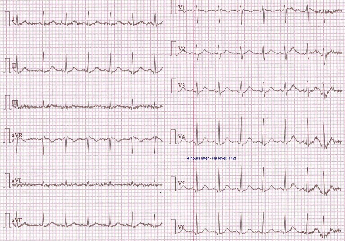 su hipertenzija EKG apkrova)