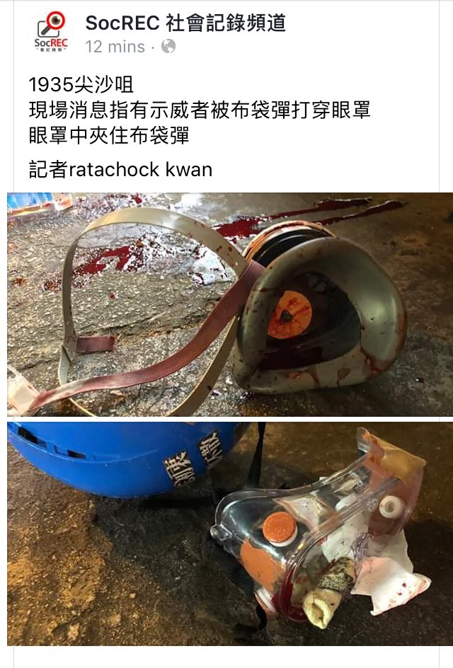 Stupendous Stuart Lau On Twitter More Blood Is Spilled On Hong Kong Beatyapartments Chair Design Images Beatyapartmentscom