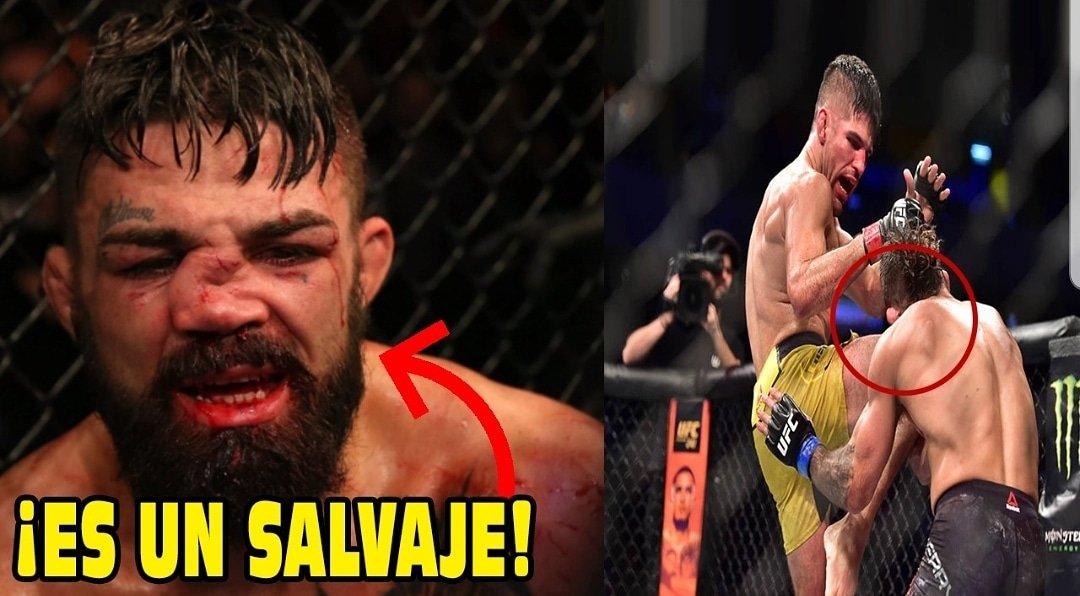 Peleadores REACCIONAN a una de  las más DESAGRADABLES lesiones en la MMA! No te pierdas los resultados se la noche UFC Uruguay!  https://youtu.be/PuD2_0ySSW4 🔥👆🔥👆🔥👆   #DEPORTES #FOXSPORTS #ESPNDEPORTES #MMA #UFCUruguay #mikeperry #UFC239 #FelizDomingo #PanamericanosxESPN #YaVote