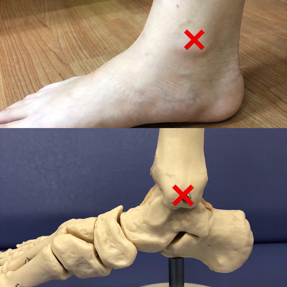 疲労 骨折 足首 疲労骨折の初期症状とは?スポーツ選手に見る7つの特徴
