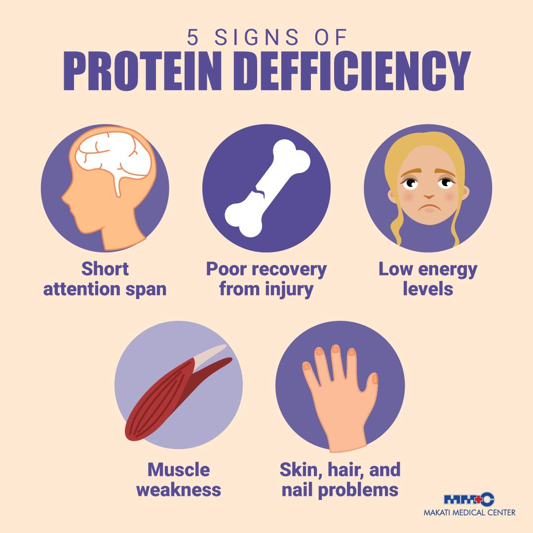 Did you know that protein grows, maintains, and heals the tissues in your body? Inadequate amount of protein may alter your body composition. Take note of these five signs of protein deficiency. #MakatiMedOfficial #YourHealthMatters