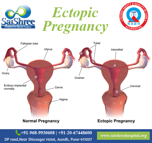 ectopicpregnancy hashtag on Twitter