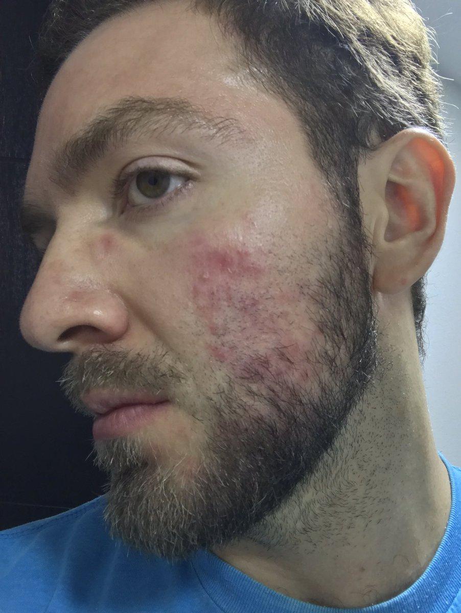 rosacea dermatitis seborreica