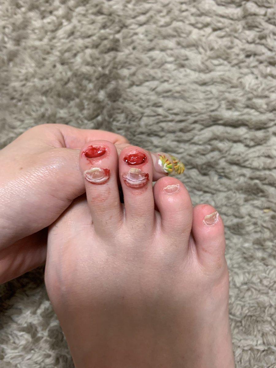 はぎ 看護 師 爪
