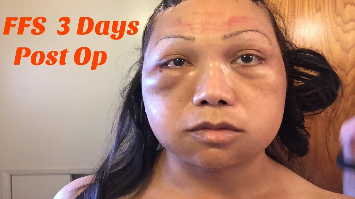 FACIAL FEMINIZATION SURGERY 3 DAYS POST OP MTF TRANSGENDER