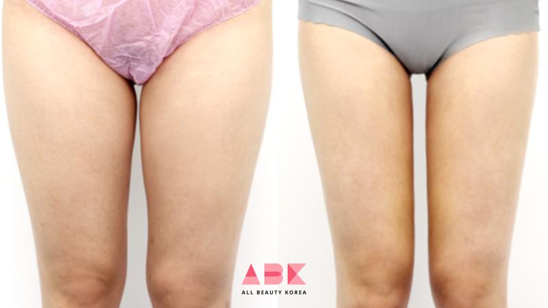 韓国美容外科サポート(ღˇ◡ˇ*)♡#ALLBEAUTYKOREA #症例写真ABK公式提携病院?【プリティボディクリニック】☑︎太もも脂肪吸引☑︎ヒップライン脂肪吸引憧れの真っ直ぐな脚?自然な脂肪吸引で理想の美脚をゲット?美容整形•専門通訳なら?ABK公式LINE ⇒