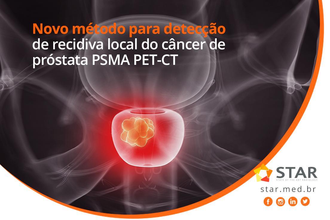 Novidade! O PSMA PET-CT surge como um potencial avanço na identificação e localização da recidiva do câncer de próstata.  Leia mais sobre o assunto: https://mla.bs/a5d84f4d  #telemedicina #telerradiologia #ressonânciamagnética #raiox #telelaudo #laudosadistância #radiologia