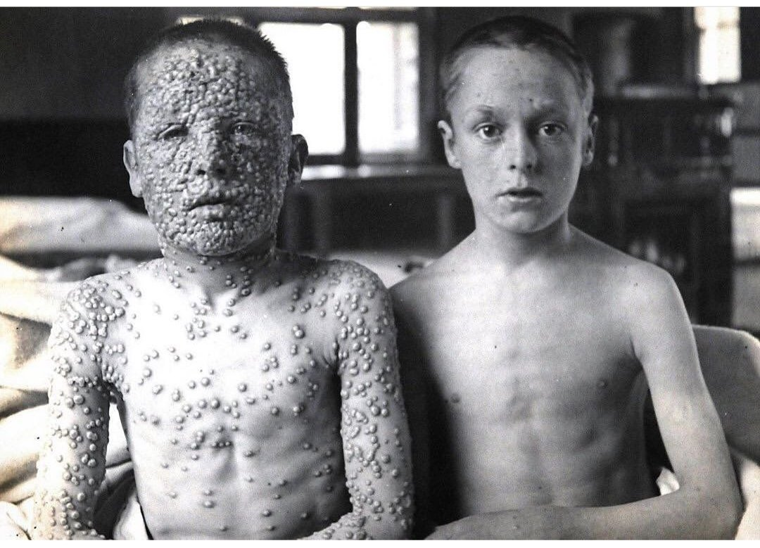If you know whats the story behind this photo, youll never say no to vaccinations. A very powerful image, showing 2 boys suffered with now-extinct Smallpox. Guess which boy was vaccinated?