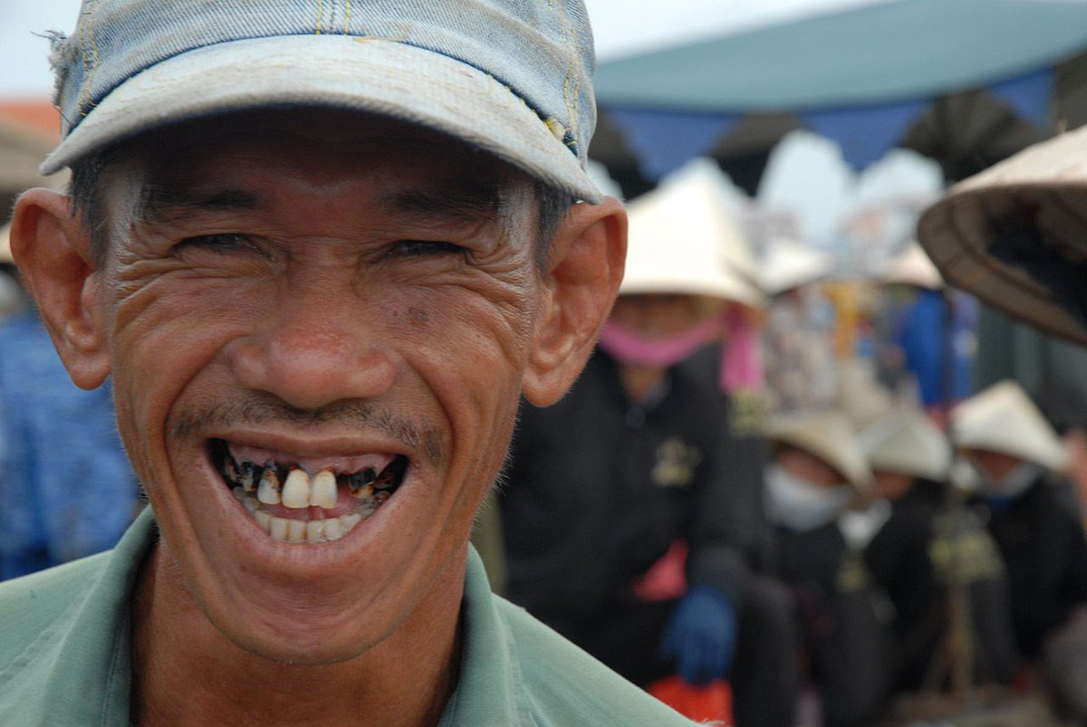 Картинка, картинки люди без зубов смешные картинки