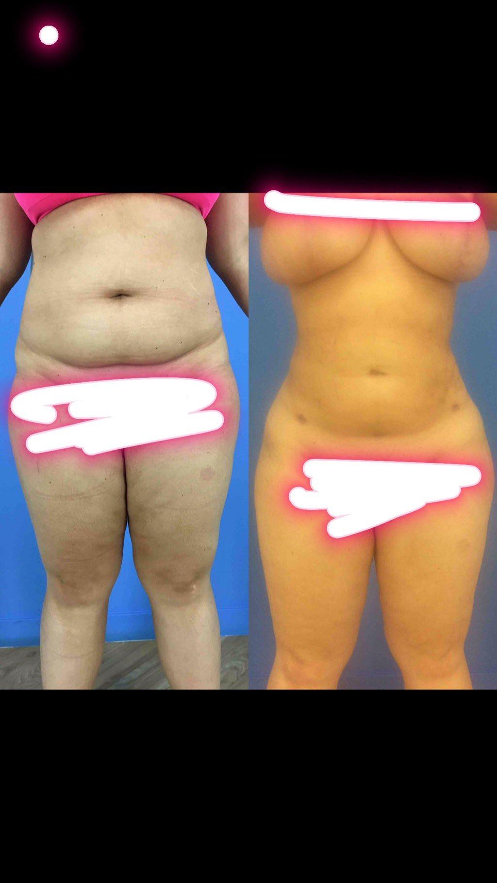 Trisha paytas breast implants