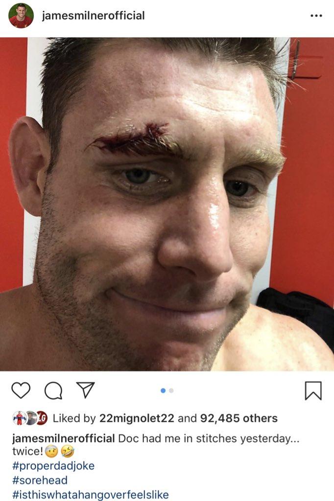 James Milner on Instagram. 👊🔴  #thisiswhatahangoverfeelslike 😂