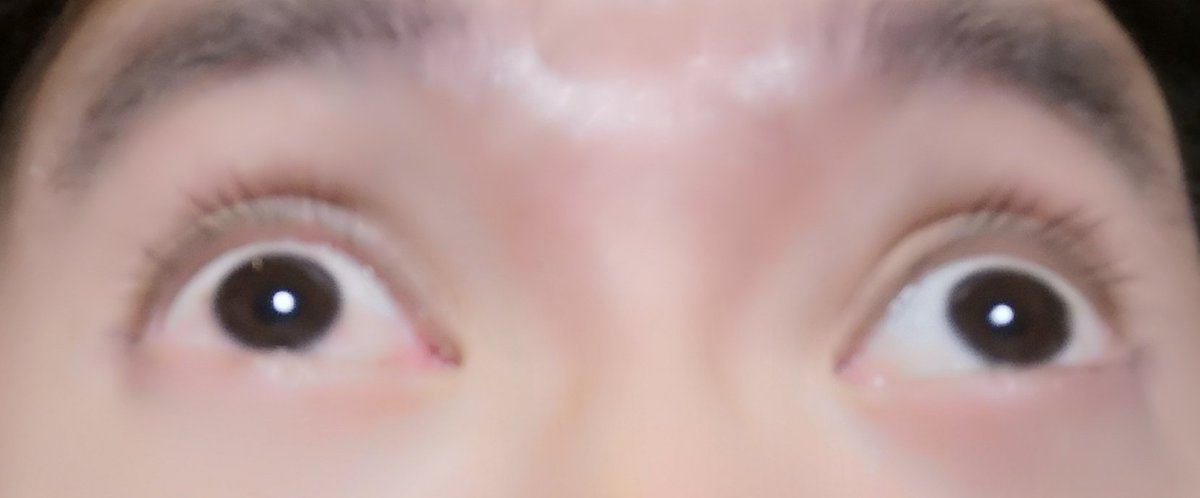 右目が赤くなっていたので写真で撮ったら、なんかすごいな。。目がやられて斜視のような、なんとも言えんない。見開いて上を見ているレーシック後遺症で斜視手術をした目。
